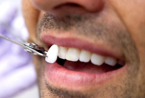 faccette_estetiche_dentali